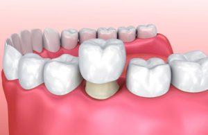 fortlee_dental_crown.jpg